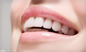 歯のセラミックのメリット・デメリット