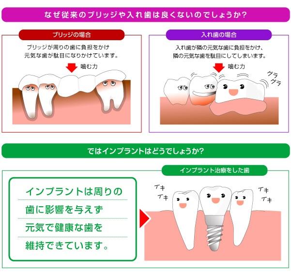 入れ歯の原因になるブリッジ