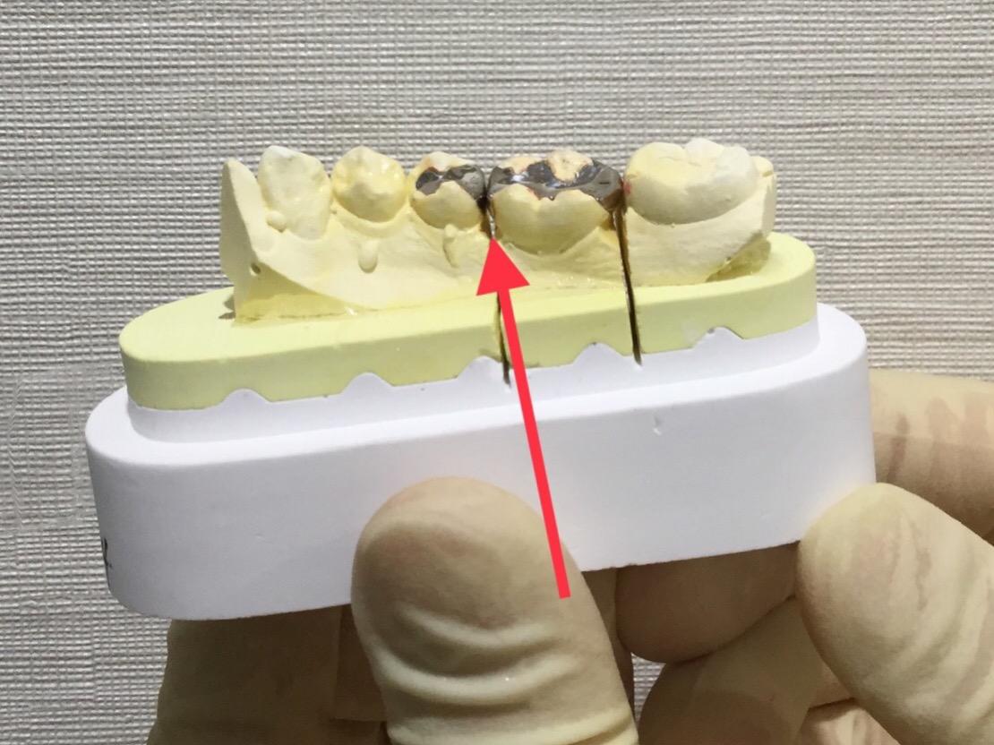 セラミックって虫歯になりにくいの?