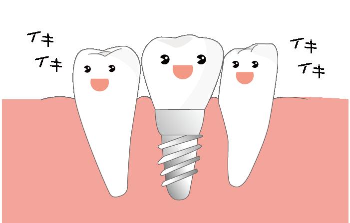 インプラント治療した歯