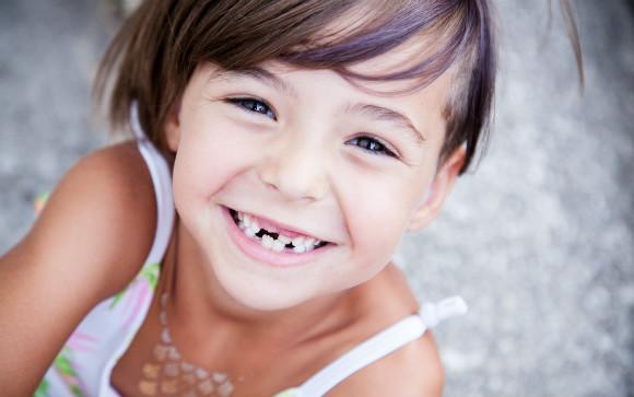 歯を失ったらどうします?