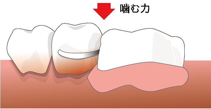 入れ歯の場合
